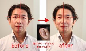 顔の傾斜がまっすぐに!肌つやが良くなり、なんと額のシワが消えています!